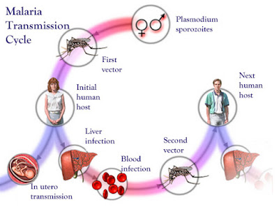 Obat Malaria Ampuh, Cara Menyembuhkan Penyakit Malaria Hingga Tuntas Sampai Pada Penyebabnya