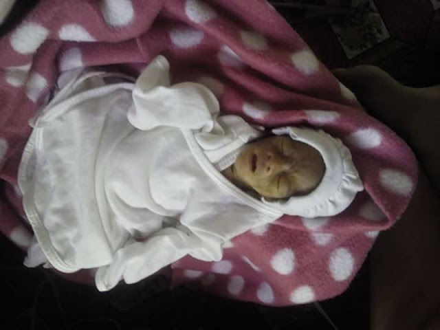 This 5 Months Old Premature Baby Was Expected To Live For Only 3 Days. It's A Miracle She's Still Alive But She Needs HELP!