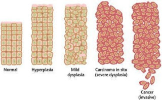 perbedaan tumor dan kanker payudara,faktor penyebab tumor dan kanker,perbedaan tumor jinak dan ganas,perbedaan tumor dan kanker pdf,pengertian tumor dan kanker,