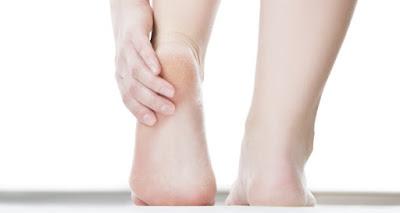 Cara Mengobati Telapak Kaki Sakit yang Sering Terasa