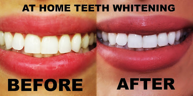 How to whiten your teeth via eventplannerng