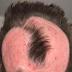 Mulher perde parte do couro cabeludo ao tentar ficar com o cabelo da moda