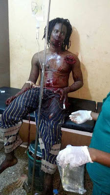 Graphic photos: Native doctor lands in hospital following odeshi test