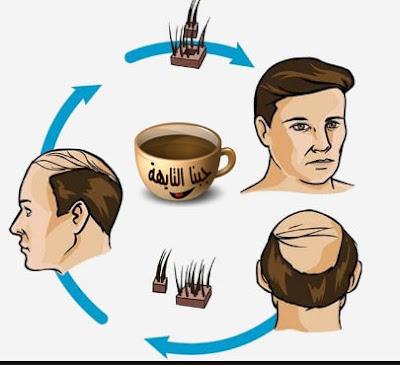 زراعة الشعر للرجال والنساء و تكلفة أفضل علاج  للصلع بالتفاصيل| hair transplant