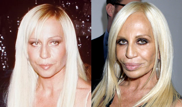 Newshocker Plastic Surgery Gone Bad Donatella Versace