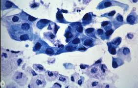 que significa metaplasia escamosa madura endocervical