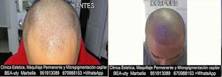 MICROPIGMENTACIÓN CAPILAR MARBELLA y MALAGA CLÍNICA ESTÉTICA, MICROPIGMENTACIÓN CAPILAR, MAQUILLAJE PERMANENTE facial con  los mejores especialistas en micropigmentación y maquillaje permanente en Marbella y Málaga