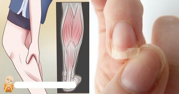 Brittle Hair or Nails? Headaches or CRAMPS? Bumps or Acne? You Likely Have THIS Deficiency