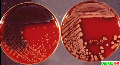 Pseudomonas aeruginosa on sheep blood agar. Left: Nonmucoid colonies. Right: Mucoid colonies. Note discoloration of media, especially on the left.