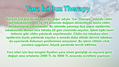 scar ıce theraphy