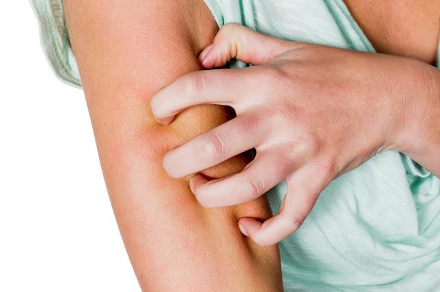 gel di aloe, proprietà cosmetiche del gel di aloe, gel di aloe per le dermatiti, rimedi naturali per la psoriasi