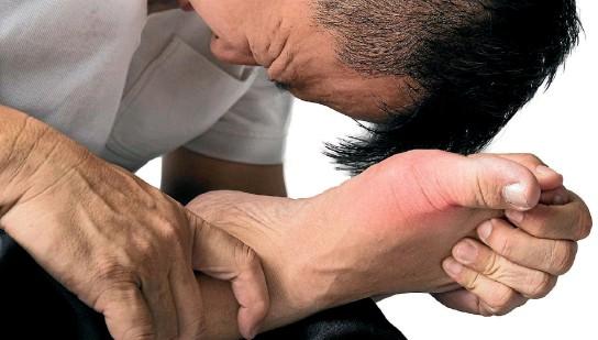 أعراض النقرس وكيفية الوقاية منه وعلاجة