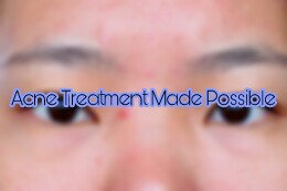 Acne Treatment Made Possible
