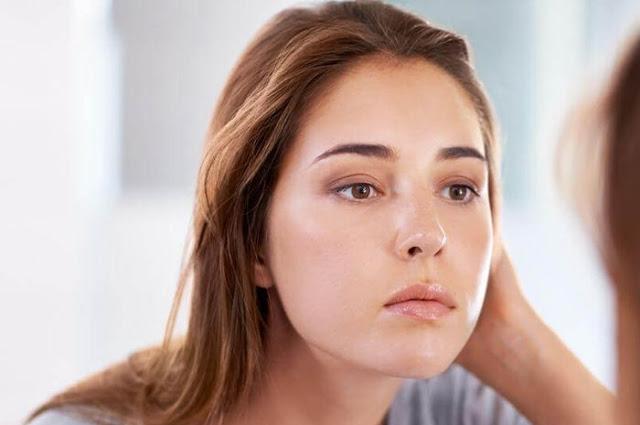 Cara Untuk Menghilangkan Minyak Yang Berlebihan Di Wajah