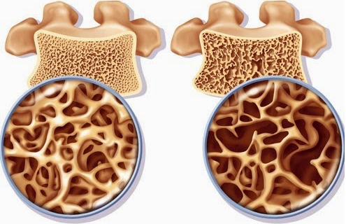 Obat Patah Tulang Paha Atas Karena Osteoporosis