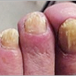 Finally the Real Cure for Fungal Nails- The ONLY Way