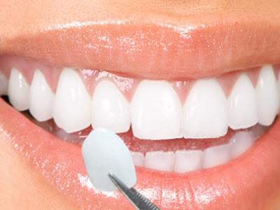 Thời gian chụp răng sứ mất bao lâu ?