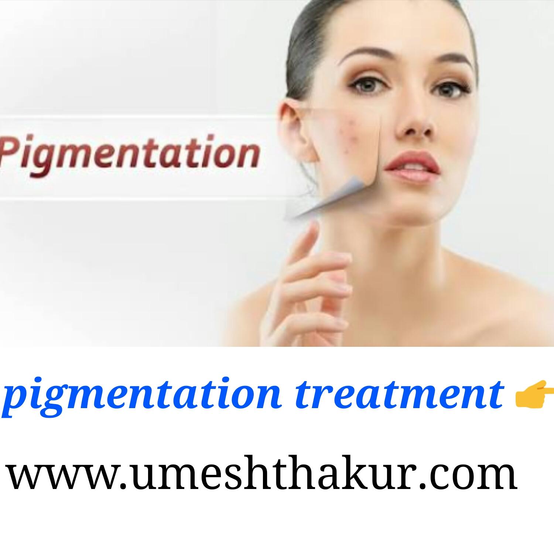Freckles Pigmentation Treatment च हर क झ ईय