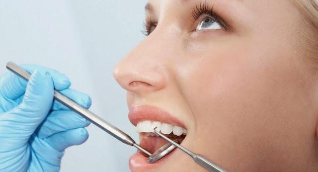 Cara mencegah agar karang gigi tidak muncul