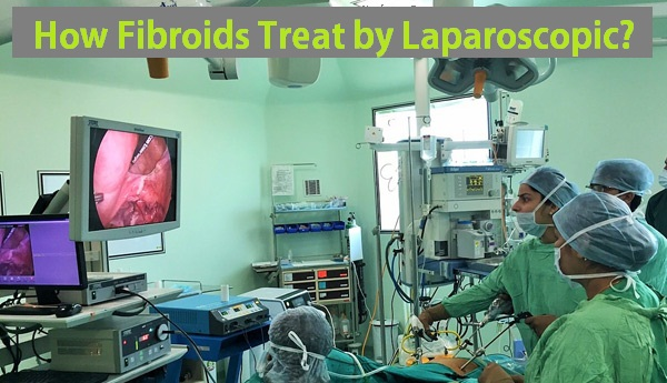 How Fibroids Treat by Laparoscopic?