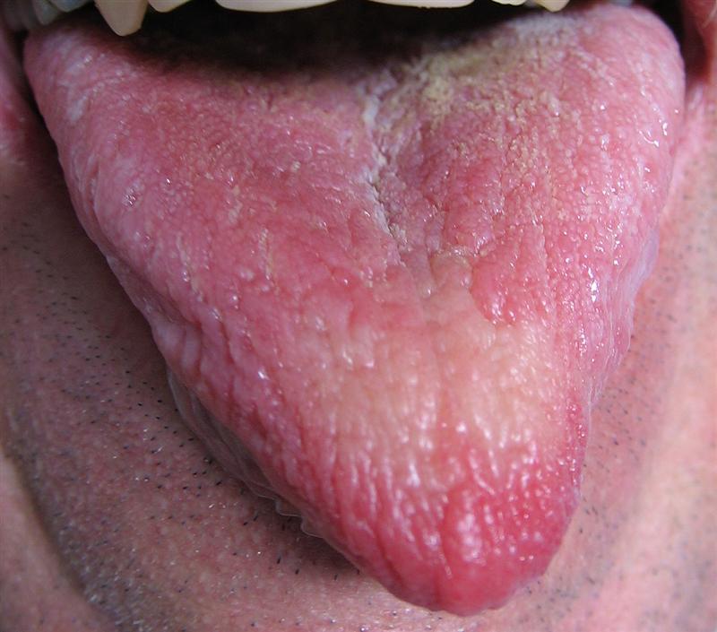 remedio para calor al estomago en la lengua