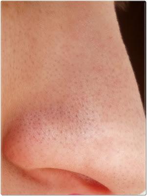 nariz puntos negros