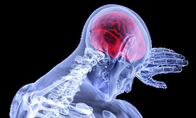 Misdiagnosed Warning Signs of Brain Tumor