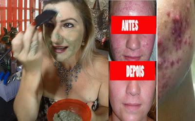 mascara para acabar com a acne