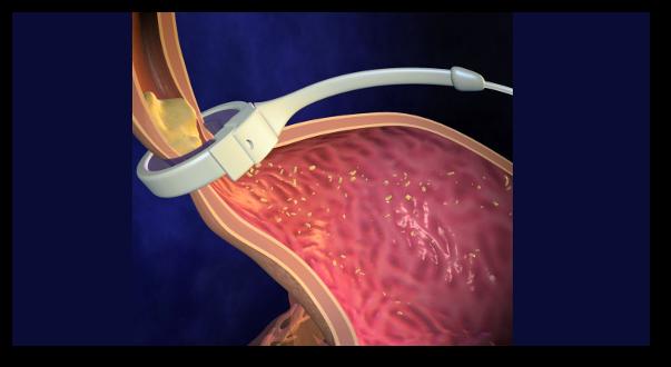 Efectul, avantajele si dezavantajele inelului gastric