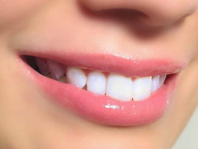 Soda bikarbona izbeljivanje zuba