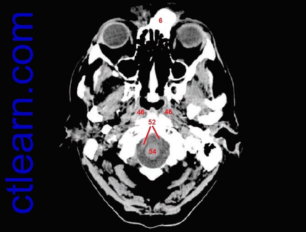 Anatomy CT Axial Brain