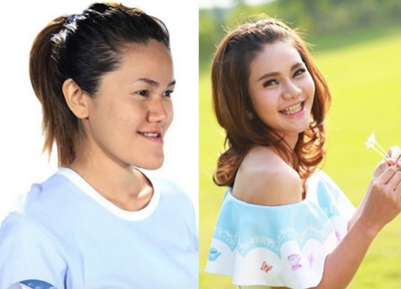 Perubahan Wajah Wanita Thai Sebelum Dan Selepas Pembedahan Plastik