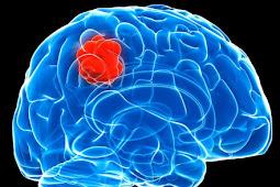 Glioma: Definition, Causes, Symptoms