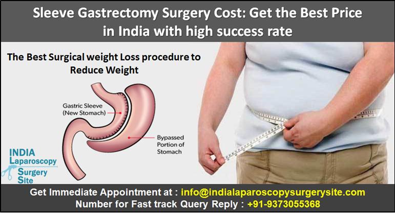 sleeve gastrectomy cost - 771×405