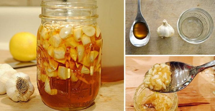 Unlock Your Arteries Naturally By Consuming This Garlic And Lemon Remedy