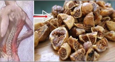 Are You Suffering From Back Or Leg Pain? This Remedy Will Remove The Pain Permanently !!!