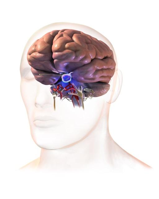 Asuhan Keperawatan Tumor Pituitari