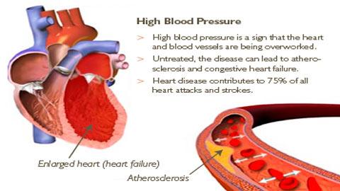 Cara Atasi Darah Tinggi Tanpa Ubat-Untuk Lebih Sihat dan Tiada Kesan Sampingan