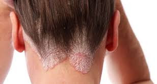 Image Merk Terkenal Obat Gatal Eksim di Kaki Punggung dan Leher