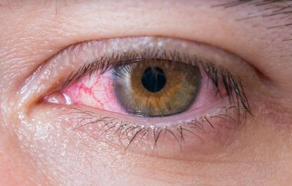 Γιατί όταν είμαστε κουρασμένοι κοκκινίζουν τα μάτια μας