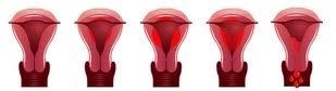 Come si forma il sangue mestruale