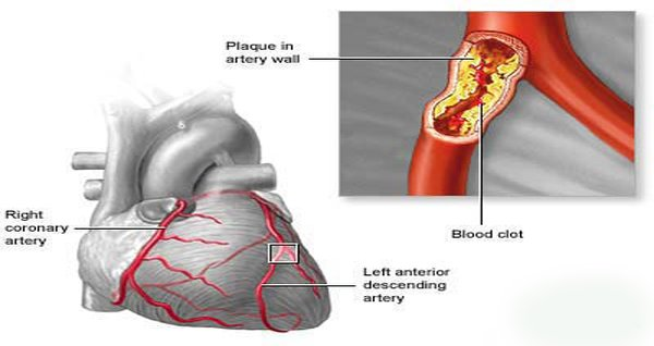 A 3-Ingredient Recipe Can BREAK DOWN Plaque Buildup in Your Arteries and CUT DOWN LDL Cholesterol