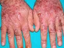 Gambar Obat Gatal Paling Ampuh Untuk Eksim Kering 100% Sembuh