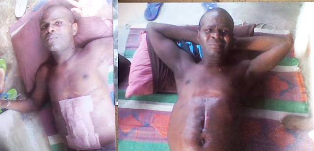 Ernest Ebina - Photos: Man brutally tortured for weeks, thrown down from 3 storey building in PH on alleged order of Navy Commodore, cries for justice
