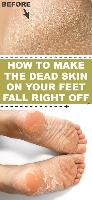 Foot Soak For Dead Skin That Actually Works
