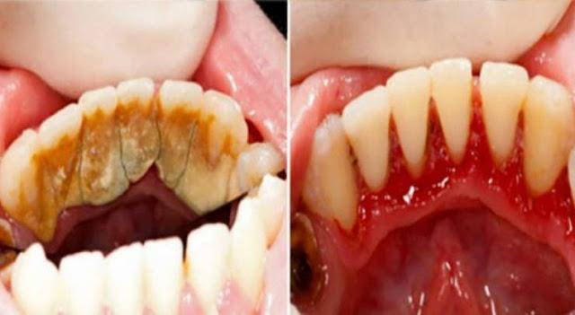 إليكم هذه الوصفة لتبييض وإزالة تكلس الأسنان من الإستعمال الأول طريقة سهلة وفعالة