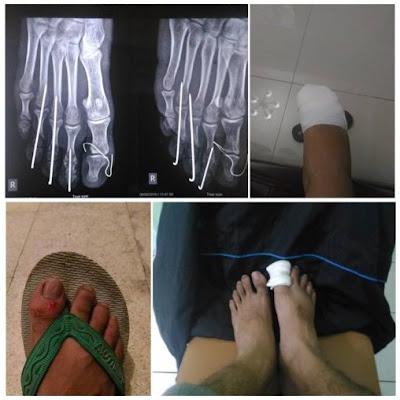 kaki patah naik motor pake sandal