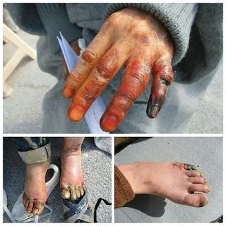 kanker pori pori akibat musim dingin estrim di alami anak anak gaza palestina