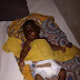 See photos of boy whose step mother cut off his genital, he undergoes a surgery...