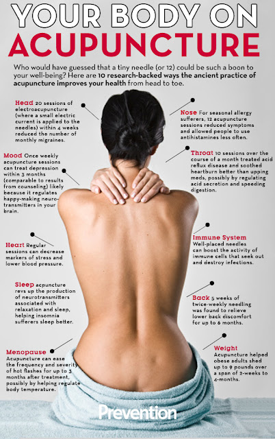 Top Benefits of Acupuncture